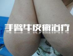 手臂牛皮癣患者怎么护理胳膊?