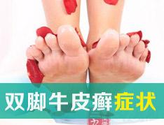 要怎样从双脚观察牛皮癣症状?