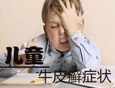 儿童银屑病的初期症状有哪些???